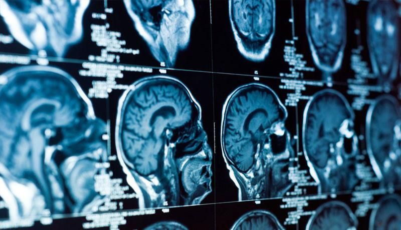san jose car accident and brain injury attorney