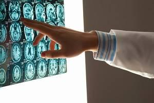 brain injury, San Jose personal injury attorney