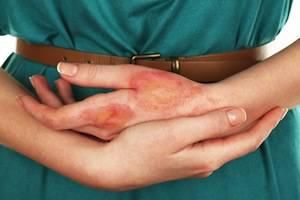 burn injuries, San Jose burn injury attorney