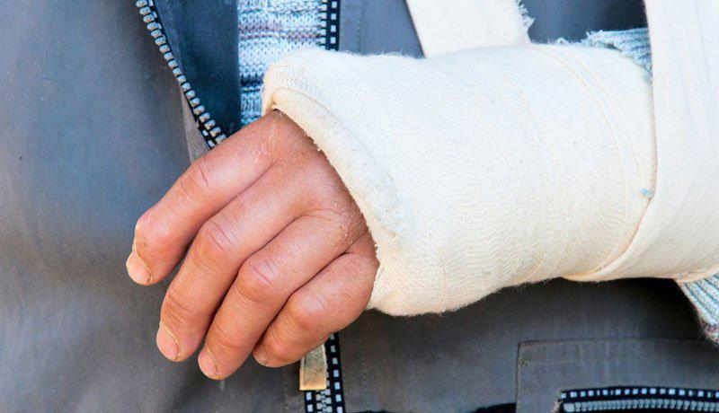 Hollister CA broken bone injury lawyer